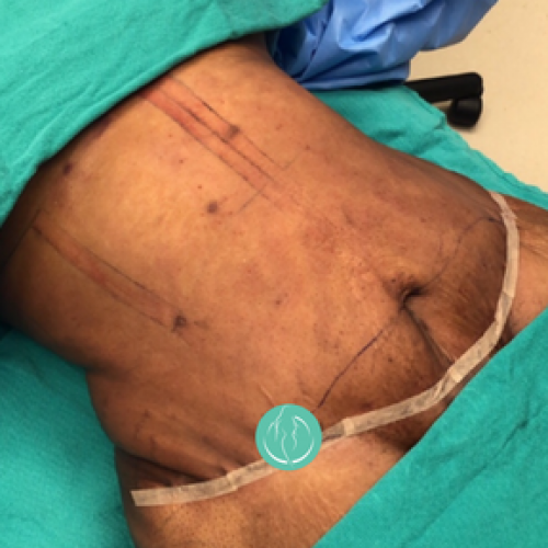 Panniculectomy Plastic Surgery Dr Craig Oser